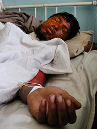 WOUNDED AFGHAN MAN LIES UNCONCSIOUS IN KABUL HOSPITAL