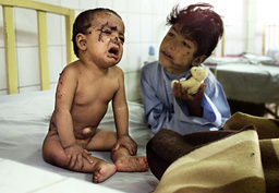 INJURED EIGHTEEN-MONTH-OLD AFGHAN BOY HAMEEDULLAH CRIES AT THE AL-KHIDMAT AFGHAN REFUGEE HOSPITAL IN QUETTA