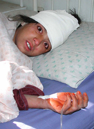 A YOUNG AFGHAN GIRL IS HOSPITALISED AFTER A U.S. AERIAL STRIKES ON KABUL