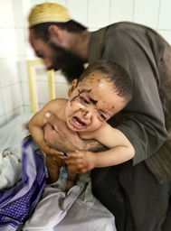 WOUNDED AFGHAN BOY IS NURSED BY HIS UNCLE AT THE AL-KHADMAT AFGHAN REFUGEE HOSPITAL IN QUETTA