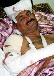 INJURED IRAQI POLICEMAN LIES IN FALLUJAH HOSPITAL BED FOLLOWING FATAL ATTACK